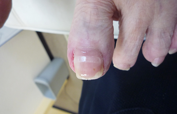 ワイヤーで改善しなかった巻き爪をリフトアッププレートを使って改善した例
