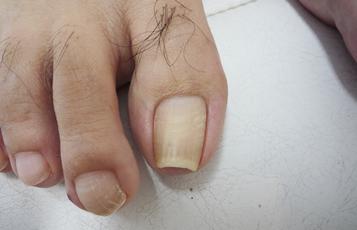 質・色・左右差・他の趾など、あらゆる角度から観察